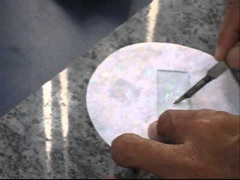 Potassium Hydroxide (KOH) Examination in Fungal Infections.wmv