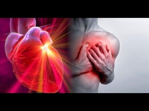 Qu es un infarto agudo al miocardio youtube for Que es un vivero frutal