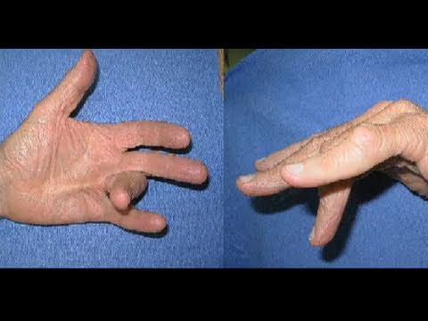 Needle Aponeurotomy for Dupuytren's Contracture - YouTube