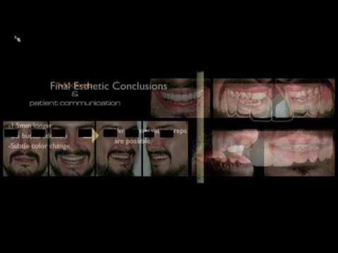 Webinar (LiveWEB) DSD - Digital Smile Design - An Interdisciplinary Approach