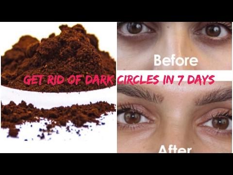 HOW TO GET RID OF DARK CIRCLES,PUFFY &BAGGY EYES | DIY COFFEE MASK | SAANVI MITTAL