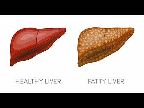 Cure Fatty Liver Without Medicines by Dr Suresh Sharma