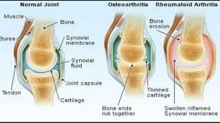 Remèdes naturels et Accueil pour la polyarthrite rhumatoïde