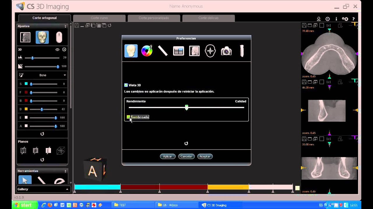 Tutorial Cs 3d Imaging Software 08 Carestream Ajustes