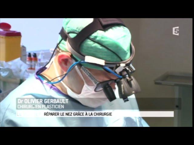 Réparer le nez grâce à la chirurgie 👃 (France 5 - Le Magazine de la Santé 24-02-2017)