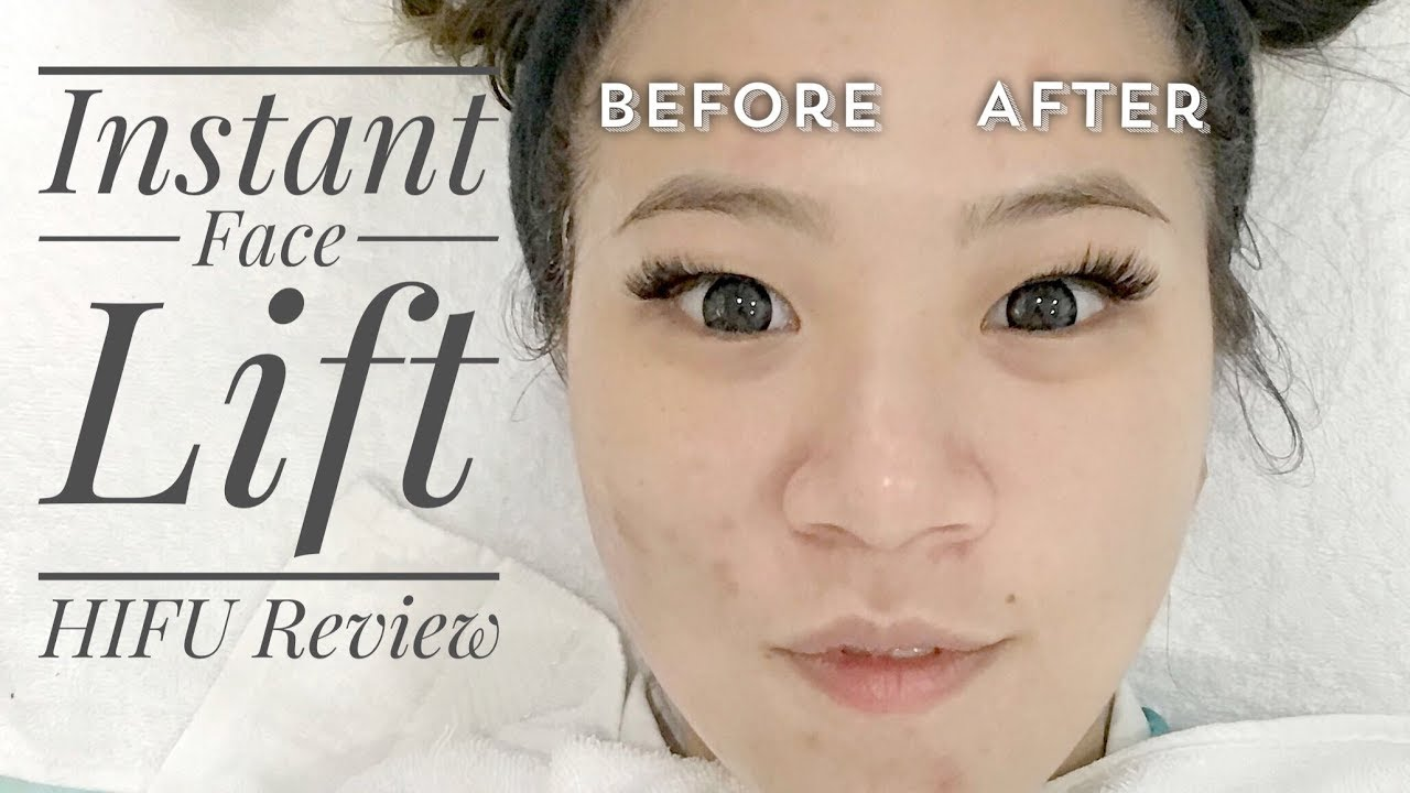 INSTANT, PAIN-FREE FACE LIFT | High Intensity Focused Ultrasound (HIFU)  Review
