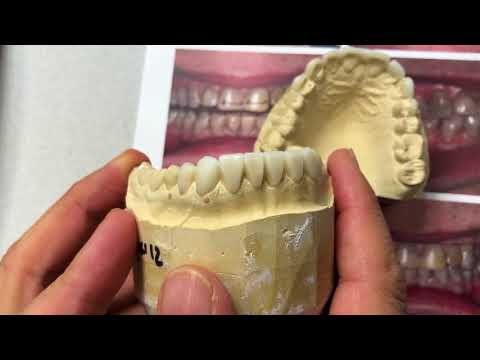 Creating A Wax-Up Treatment Plan - Pre-planning & Results | Dental Lab Learning