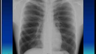 Chest xray, Respiratory system,  Pneumonia, consolidation