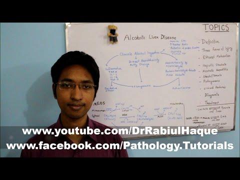 Alcoholic Liver Disease Part 2 (HD)