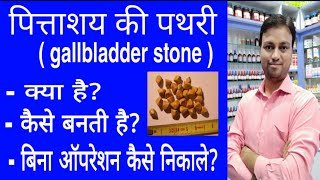 gall bladder stone, homeopathic medicine for gall bladder stone, pittashay ki pathri, pitt ki pathri