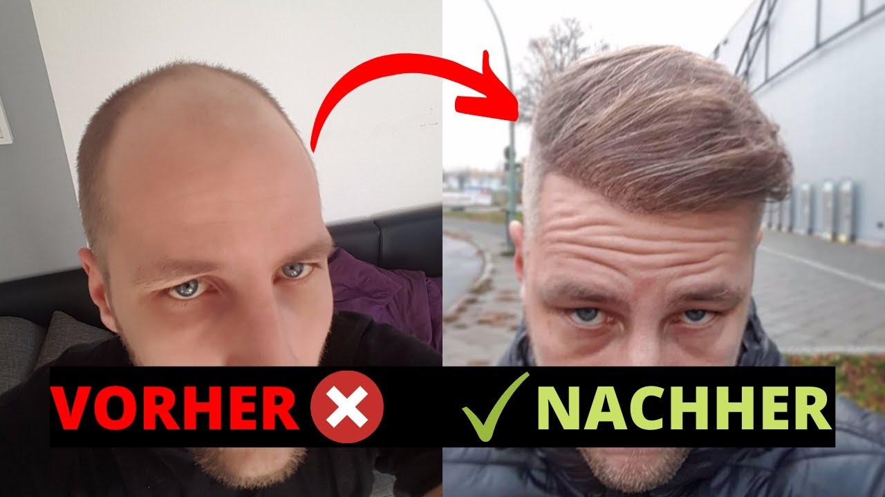 Haartransplantation Ergebnis nach 15 Monaten - Haarausfall