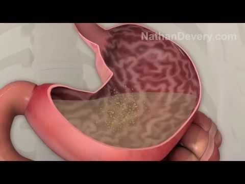 Virtual weight loss visualizer