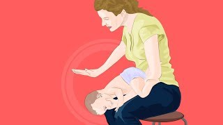Ребенок подавился и задыхается! Узнайте, что делать.