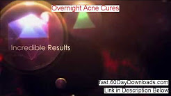 hqdefault - Overnight Acne Cures Ebook Download