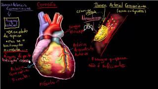 Doença sinais observacionais coronária de cardíaca