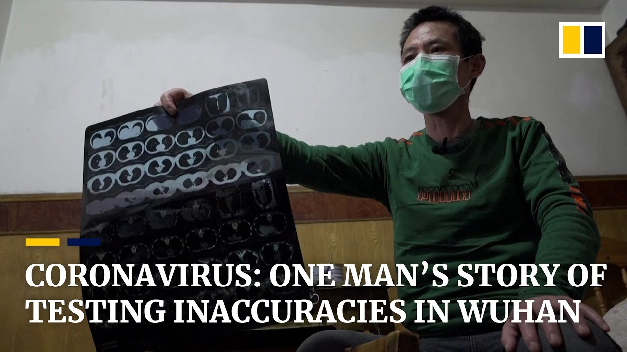 One Wuhan patient's story of repeatedly testing false negative for coronavirus