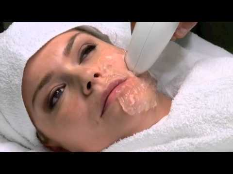 Viora Reaction Treatment - Non Invasive Treatment for Nasolabial Folds and More!