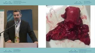 Хирургия рака шейки матки ранних стадий