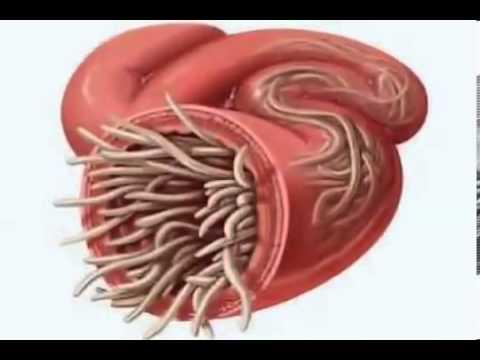 PARASITES inside every human body - YouTube