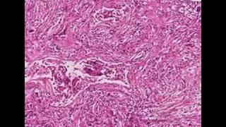Histopathology Lung--Metastatic leiomyosarcoma