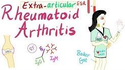 Rheumatoid arthritis (Part 6): Extra-articular manifestations