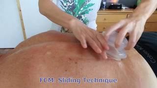 FCM Sliding Technique