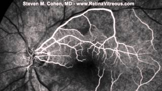 Central Retinal Artery Occlusion with Cilioretinal Artery Sparing - Fluorescein Angiogram Video