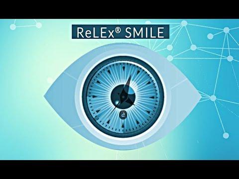 ReLEx Smile внутрироговичная фемтосекундная лазерная ...