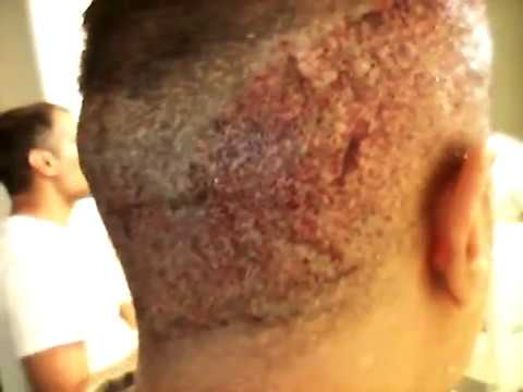 Hair Transplant Surgery - Bandages off Day 1 Post