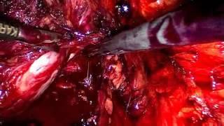 Prostatectomie radicale par voie laparoscopique extrapéritonéale - Chapitre 3 - Prostatectomie