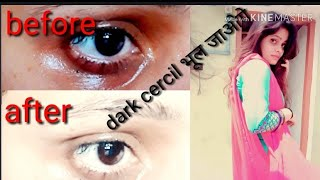 How to remove dark cercil naturally in 3 days  (100% results)