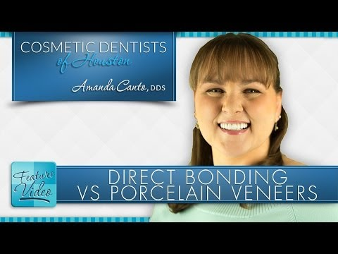 dentist-in-houston-explains-dental-bonding-vs-porcelain-veneers