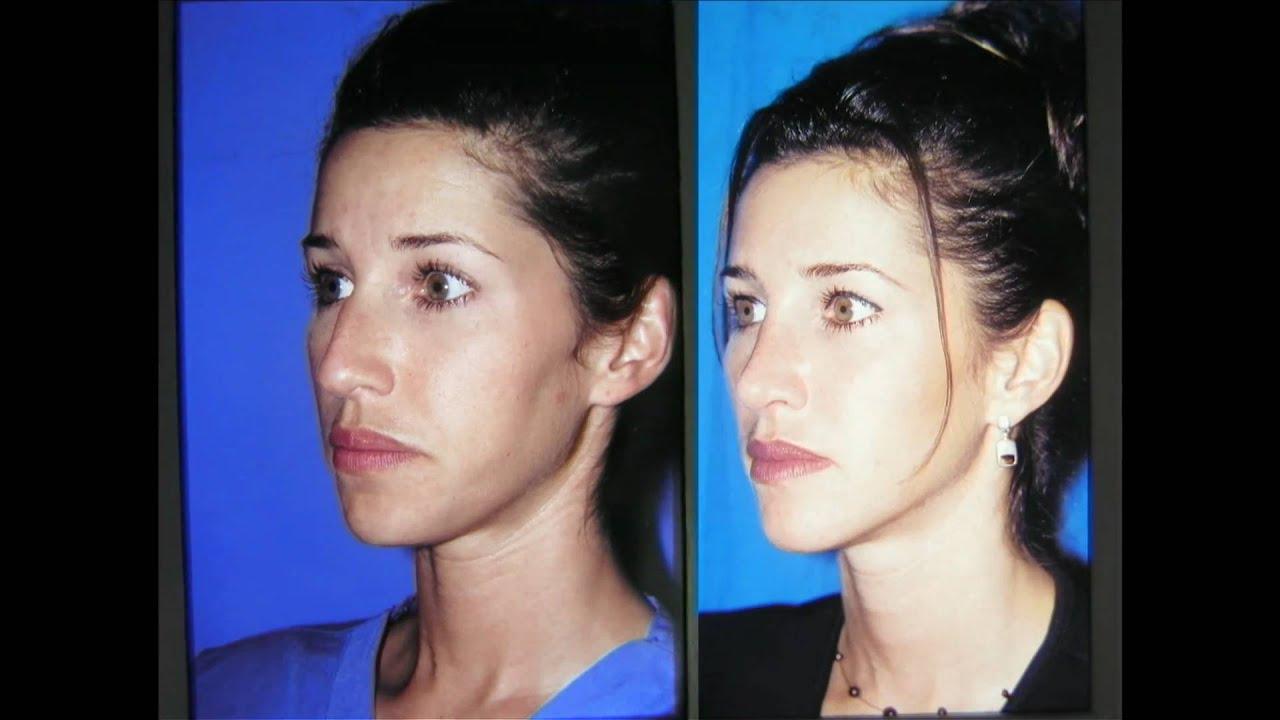 Clymer Facial Plastic Surgery 42