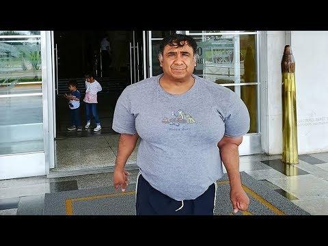 """El buzo peruano que tiene el cuerpo """"inflado"""" desde hace 4 años"""