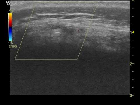 image of Cpt Code For Level 2 Ultrasound 1