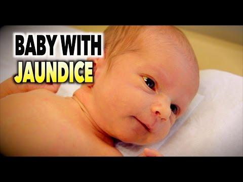 BABY WITH JAUNDICE (Hyperbilirubinemia) | Dr. Paul