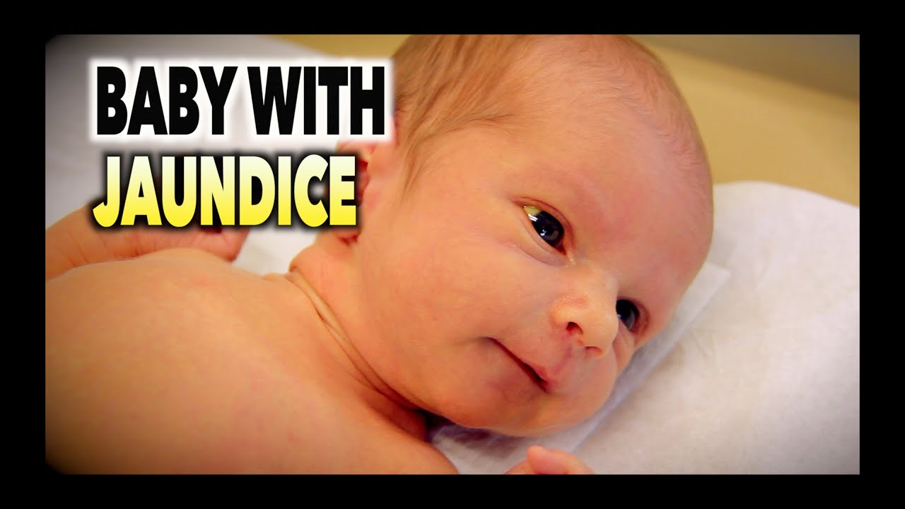 BABY WITH JAUNDICE (Hyperbilirubinemia) | Dr. Paul - YouTube