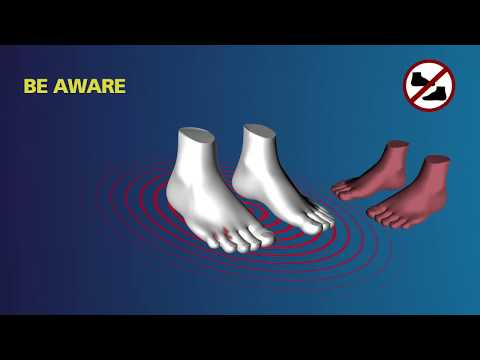ATHLETE'S FOOT SYMPTOMS CAUSES AND CURE