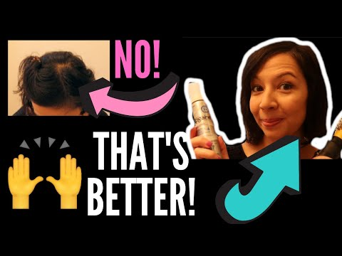 morning-grwm-rogaine-hair-styling-routine!-putting-on-makeup-and-covering-up-thin-and-balding-spots!