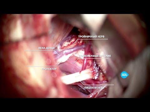 Невралгия тройничного нерва. Нейрохирург Реутов А.А.