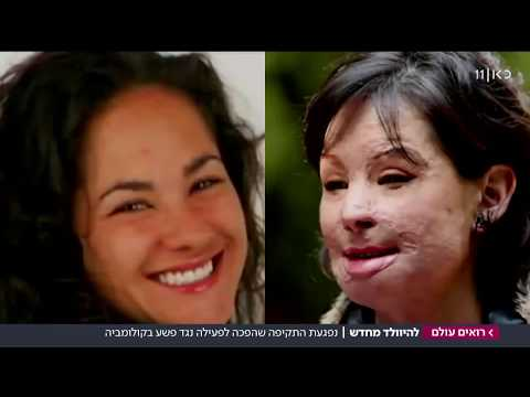 'אני נס': האישה שהותקפה בחומצה, מוכיחה שאפשר להיוולד מחדש