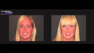 Matching One or Two Indirect Restorations to Natural Dentition Thumbnail