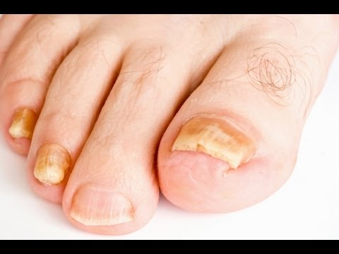 Toenail Fungus Treatment: Home Remedies Known To Cure Toenail Fungus
