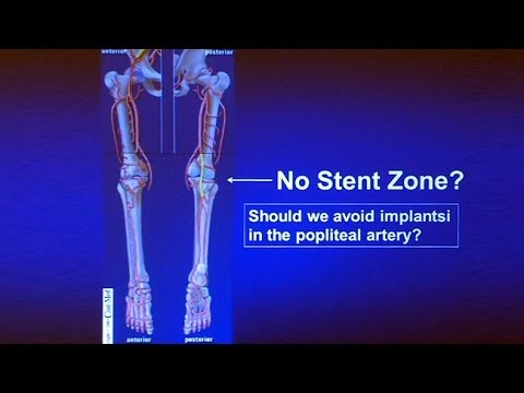 Popliteal Artery Lesions: How I Decide Between Atherectomy Stenting or Bypass