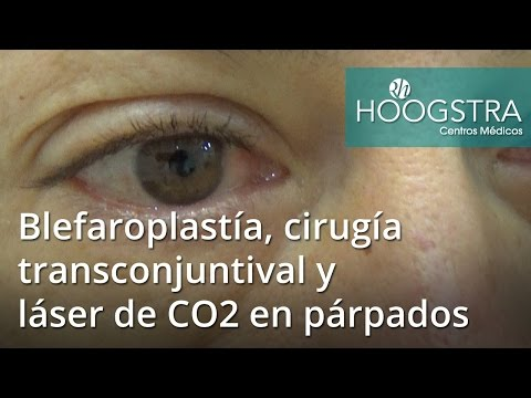 Blefaroplastía, cirugía transconjuntival y láser de CO2 en párpados (16122)