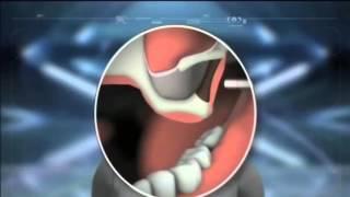 Новые Технологии в Стоматологии , Белоснежная улыбка