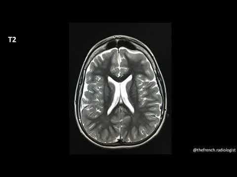 Download TFR : les séquences IRM