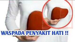 Bincang Sehati Kenali Gejala Penyakit Sirosis Hati | DAAI TV, tayang 14 Mei 2018.