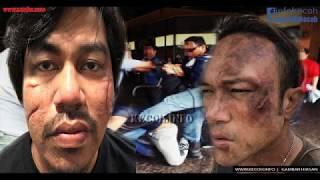 [2.83 MB] Viral Jep Sepahtu bergaduh dengan Shahiezy Sam sehingga luka teruk?