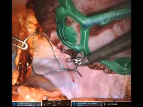 echo ventral hernia repair 9/14/2015